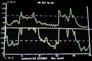 Instrumentation dual emg